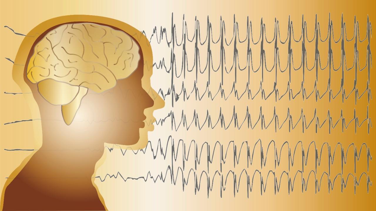 epilepsie gevolgen